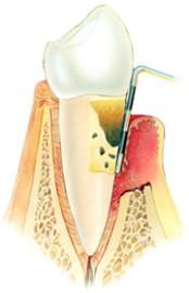 parodontiumstatus